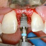 terapia implantare