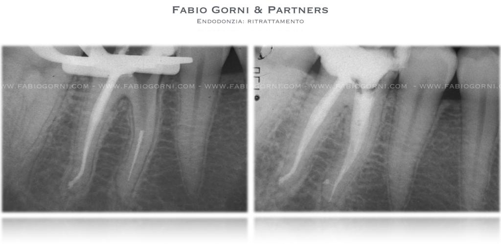Endodonzia Ritrattamento