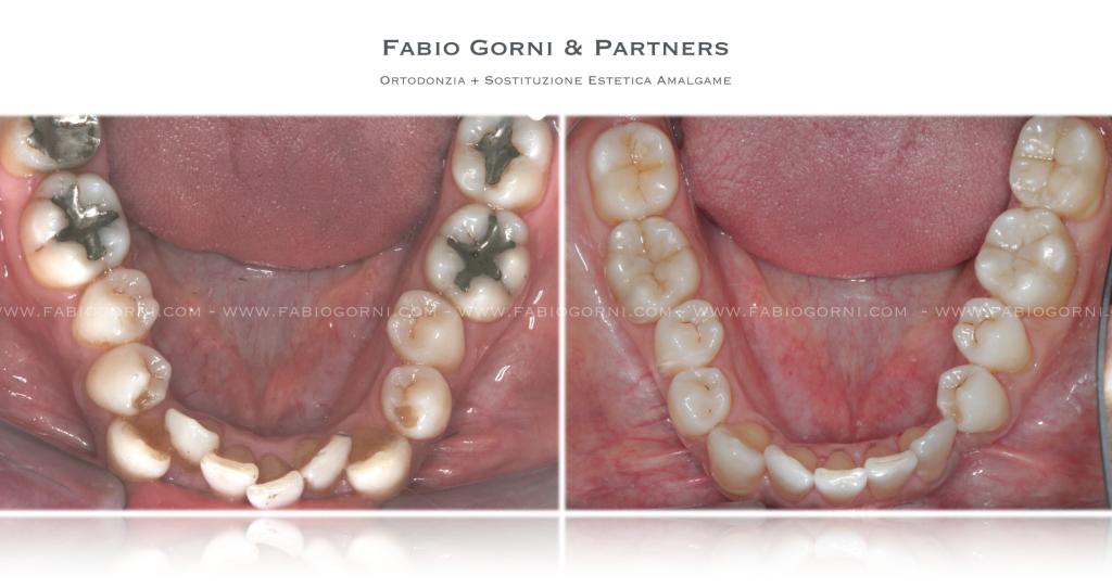FG. - Ortodonzia 2
