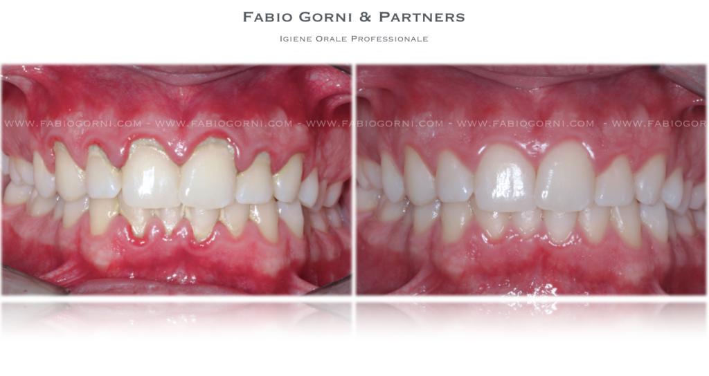 Igiene Orale Professionale - IOP